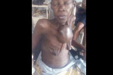 Manuela Okomo Mba pide al pueblo de Guinea Ecuatorial ayuda para ser operada