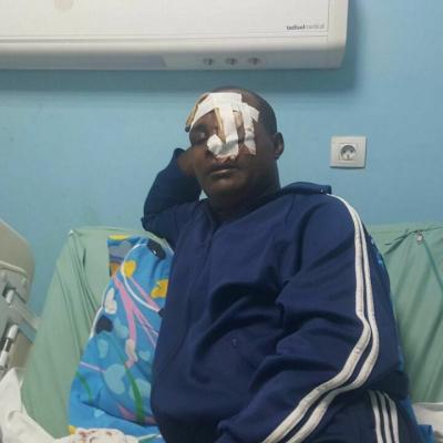 Pablo Owono atropellado por encargo, al querer cobrar de una trabajo realizado