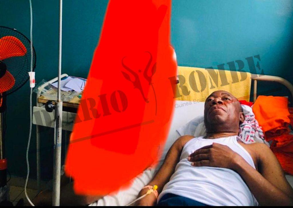 Alejandro Nguema Osa Nchama postrado en la cama del Hospital General de Malabo después de la última tortura que le propinaron el 30 de junio 2020.