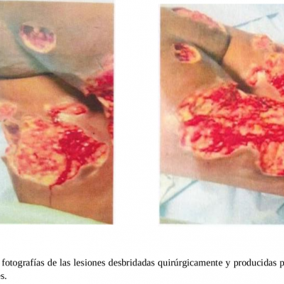 Los puntos claves del demoledor informe de la comunidad LGTBIQ+ de Guinea Ecuatorial